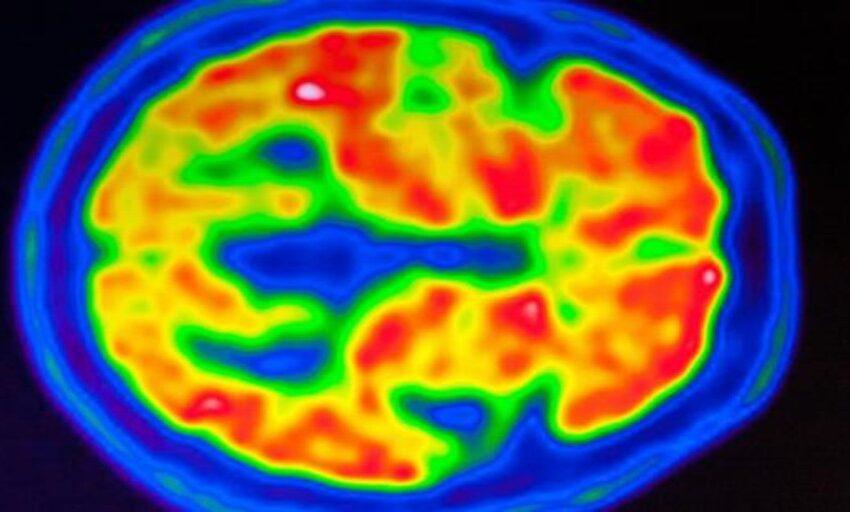 Las dudas razonables del fármaco aprobado para el alzhéimer