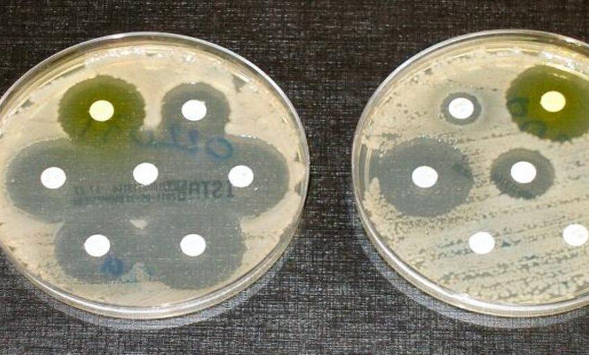 Los antibióticos se relacionan con un mayor riesgo de cáncer de colon a 10 años