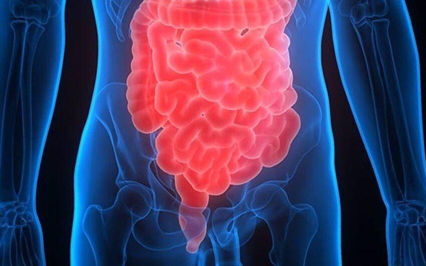 Cáncer de colon, identifican su riesgo por el abuso de antibióticos
